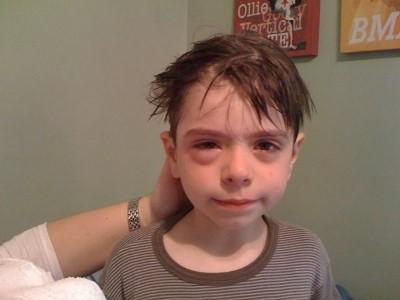 Gyermek allergia
